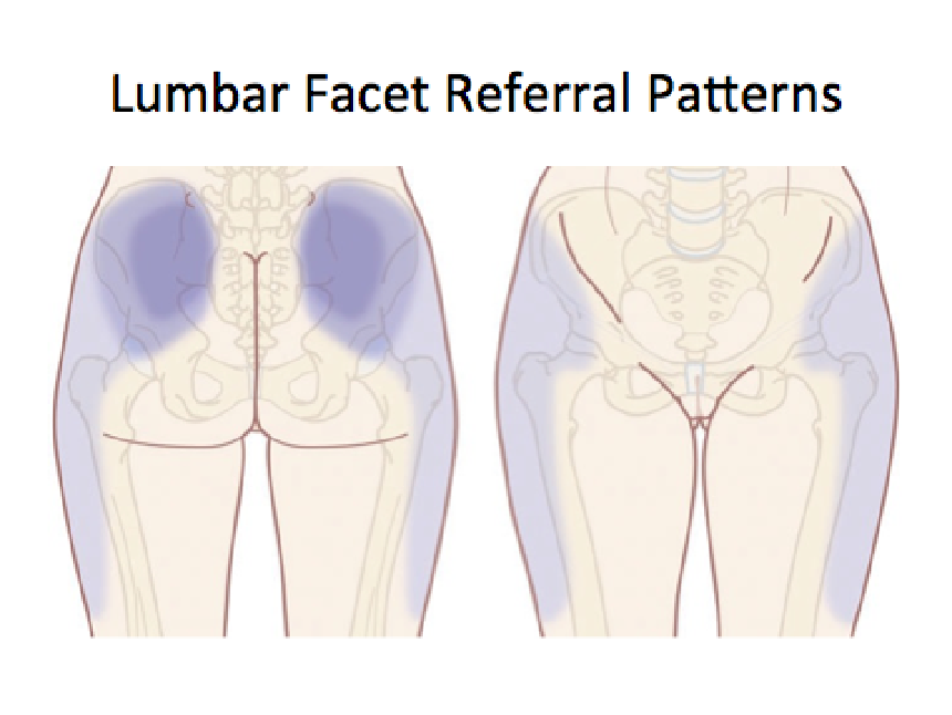 The Referral Patterns Of The Sacroiliac Joint Facet Joints And Stunning Pain Referral Patterns