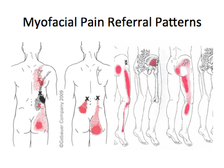 The Referral Patterns Of The Sacroiliac Joint Facet Joints And Unique Pain Referral Patterns