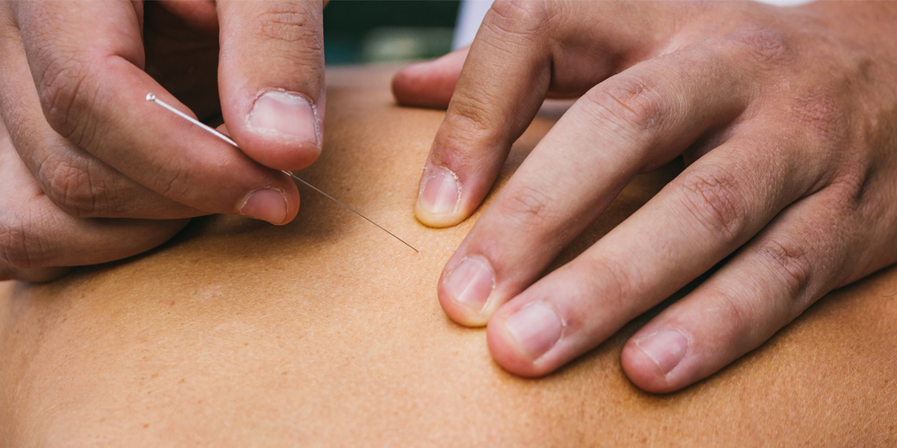 Learn the differences between acupuncture and dry needling