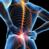 Piriformis Syndrome, Buttock Pain, Physical Therapy